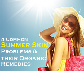 4 Common Summer Skin Problems And Their Organic Remedies